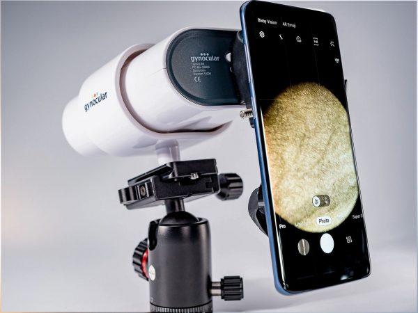 Colposcop mobil Gynocular